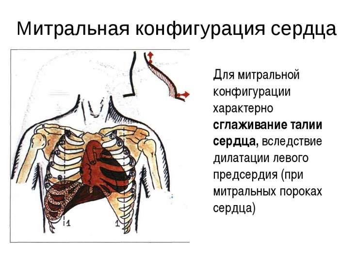 Митральная конфигурация сердца Для митральной конфигурации характерно сглажив...
