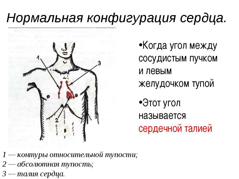 Нормальная конфигурация сердца. 1 — контуры относительной тупости; 2 — абсолю...