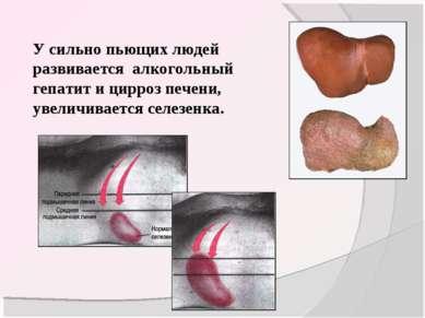 У сильно пьющих людей развивается алкогольный гепатит и цирроз печени, увелич...