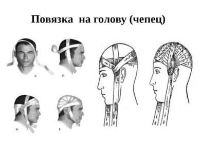 Повязка на голову (чепец)