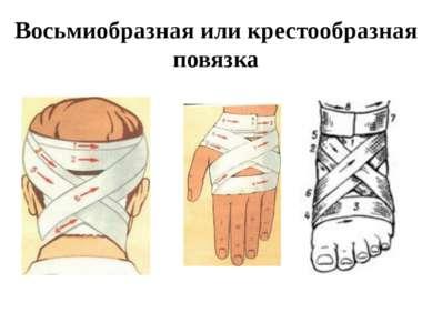 Восьмиобразная или крестообразная повязка