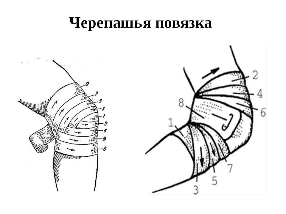 бинт локтевой сустав