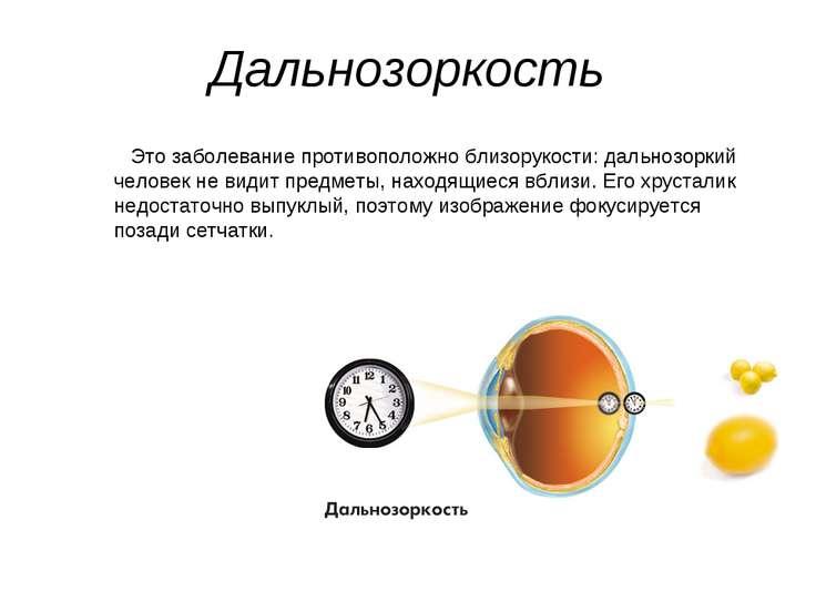 Дальнозоркость Это заболевание противоположно близорукости: дальнозоркий чело...