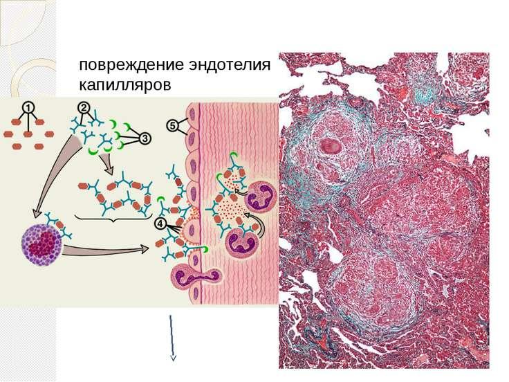 повреждение эндотелия капилляров