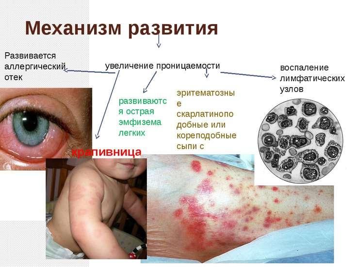 Механизм развития увеличение проницаемости Развивается аллергический отек кра...