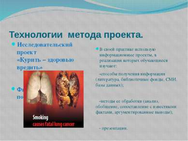 Технологии метода проекта. Исследовательский проект «Курить – здоровью вредит...