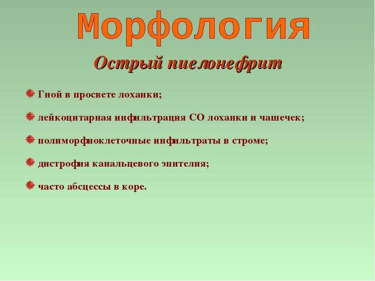 Острый пиелонефрит Гной в просвете лоханки; лейкоцитарная инфильтрация СО лох...