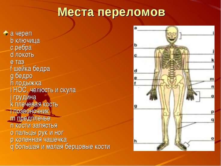 Места переломов а череп b ключица с ребра d локоть е таз f шейка бедра g бедр...