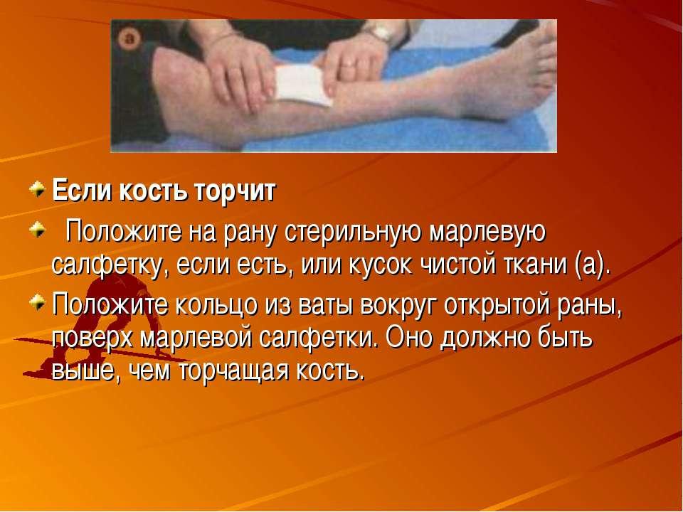 Если кость торчит Положите на рану стерильную марлевую салфетку, если есть, и...