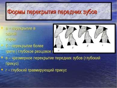 Формы перекрытия передних зубов а – перекрытие в пределах одной трети высоты ...