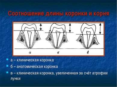 Соотношение длины коронки и корня а – клиническая коронка б – анатомическая к...