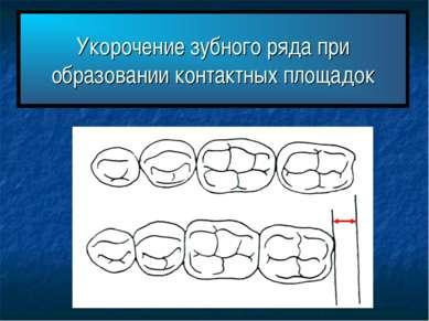 Укорочение зубного ряда при образовании контактных площадок