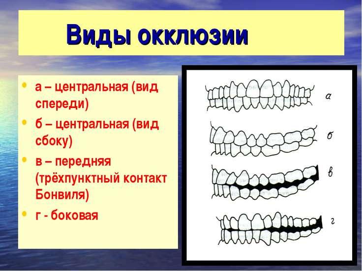 Виды окклюзии а – центральная (вид спереди) б – центральная (вид сбоку) в – п...