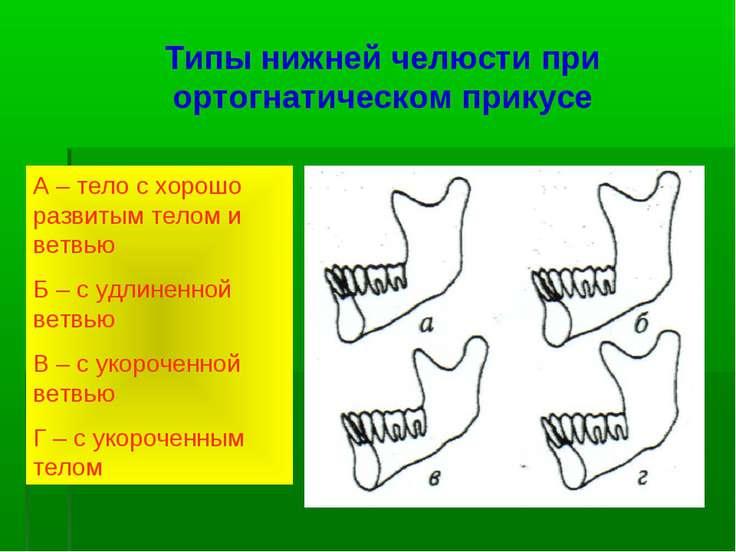 Типы нижней челюсти при ортогнатическом прикусе А – тело с хорошо развитым те...