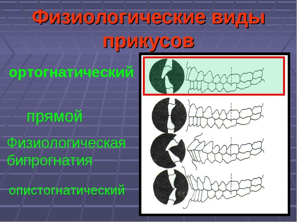 Физиологические виды прикусов прямой ортогнатический Физиологическая бипрогна...