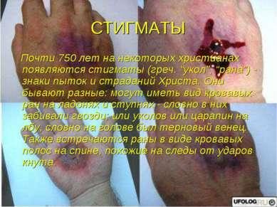 """СТИГМАТЫ Почти 750 лет на некоторых христианах появляются стигматы (греч. """"ук..."""