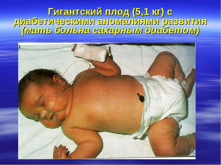 Гигантский плод (5,1 кг) с диабетическими аномалиями развития (мать больна са...