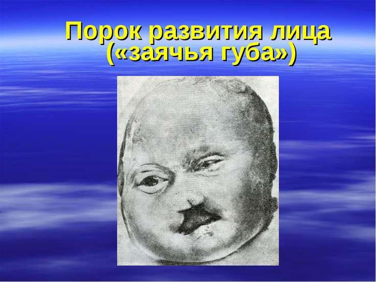 Порок развития лица («заячья губа»)