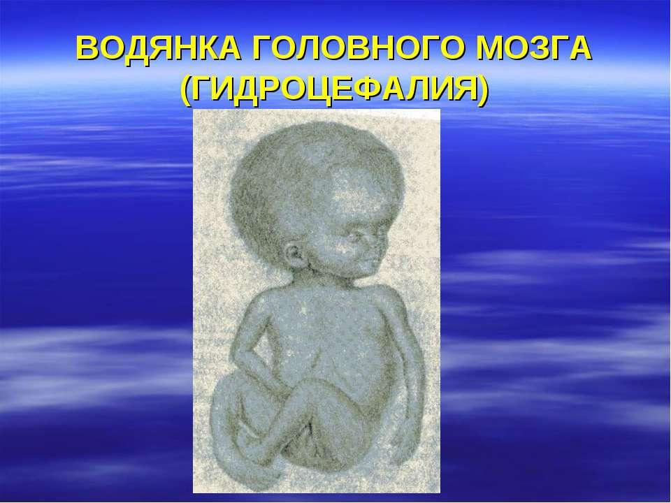 ВОДЯНКА ГОЛОВНОГО МОЗГА (ГИДРОЦЕФАЛИЯ)