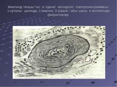 Миелинді талшықтың кқлденең кесіндісінің электроннограммасы: 1-орталық цилинд...