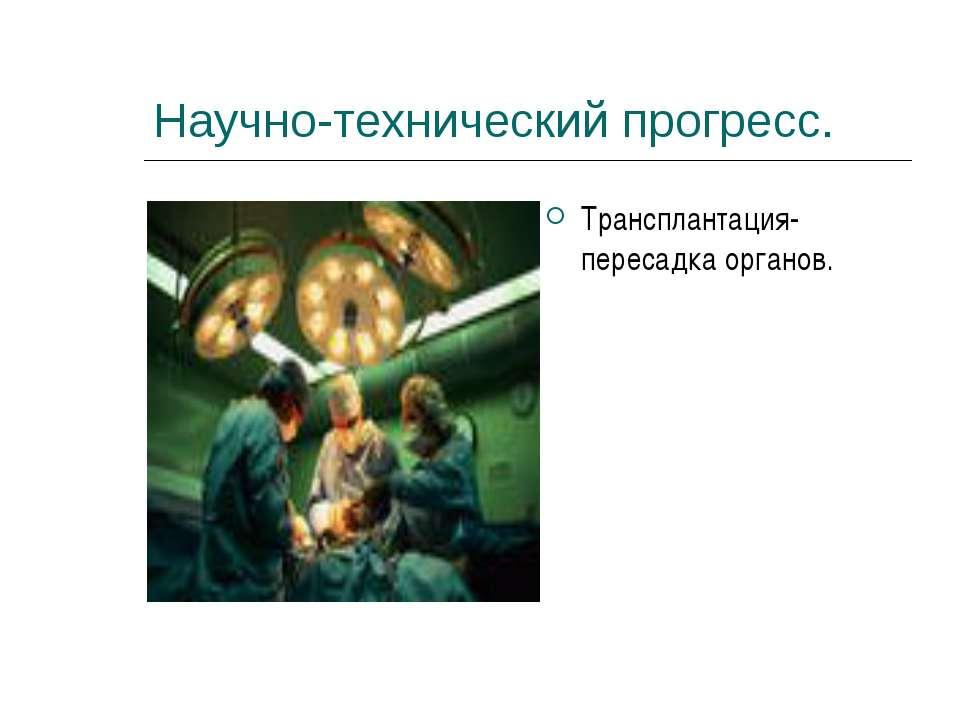 Научно-технический прогресс. Трансплантация- пересадка органов.