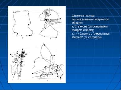 Движение глаз при рассматривании геометрических объектов: а, б - в норме (рас...