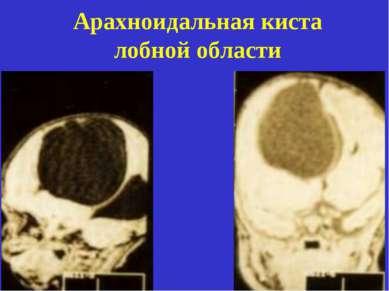 Арахноидальная киста лобной области