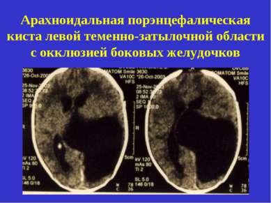 Арахноидальная порэнцефалическая киста левой теменно-затылочной области с окк...
