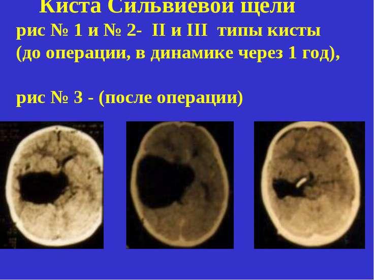 Киста Сильвиевой щели рис № 1 и № 2- II и III типы кисты (до операции, в дина...