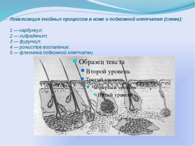 Локализация гнойных процессов в коже и подкожной клетчатке (схема): 1 — карбу...