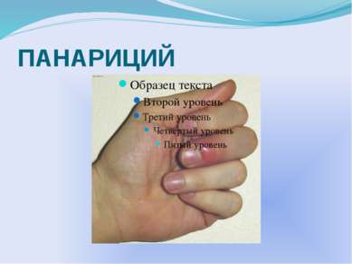 ПАНАРИЦИЙ