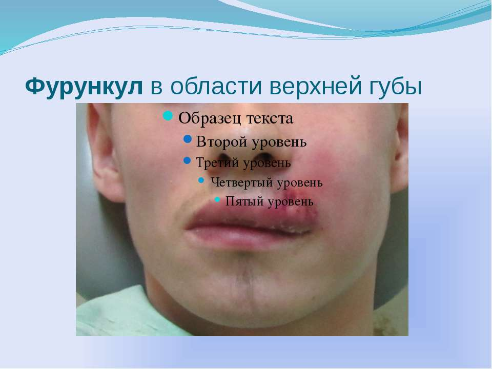 Фурункул в области верхней губы