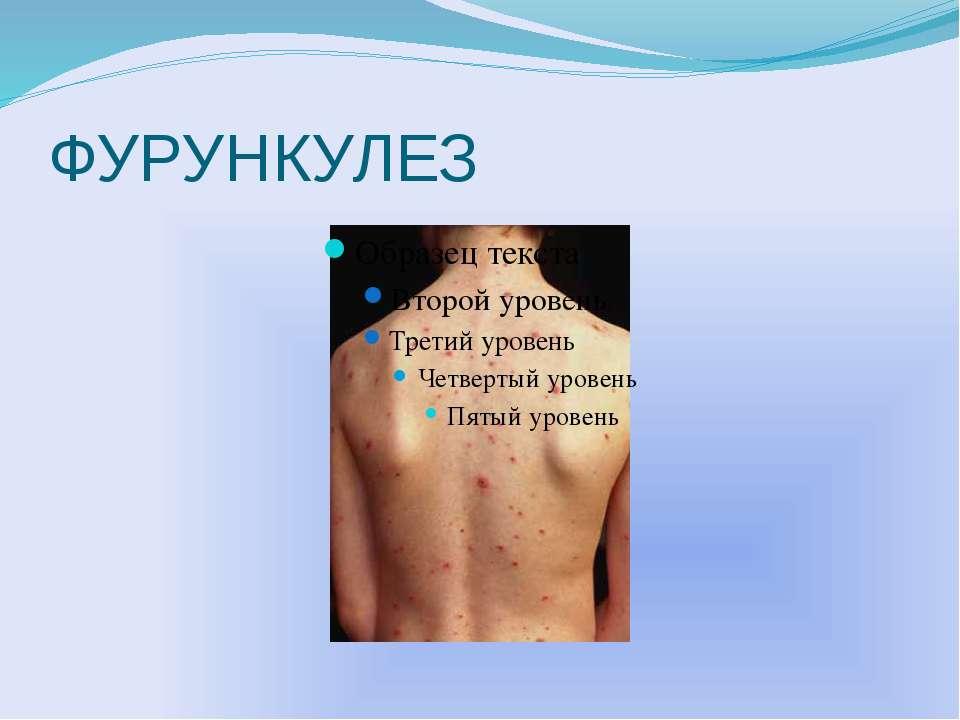ФУРУНКУЛЕЗ