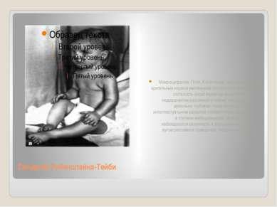 Синдром Рубинштейна-Тейби Микроцефалия; Птоз, Косоглазие, нистагм, атрофия зр...