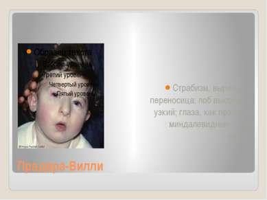Прадера-Вилли Страбизм, выражена переносица; лоб высокий и узкий; глаза, как ...