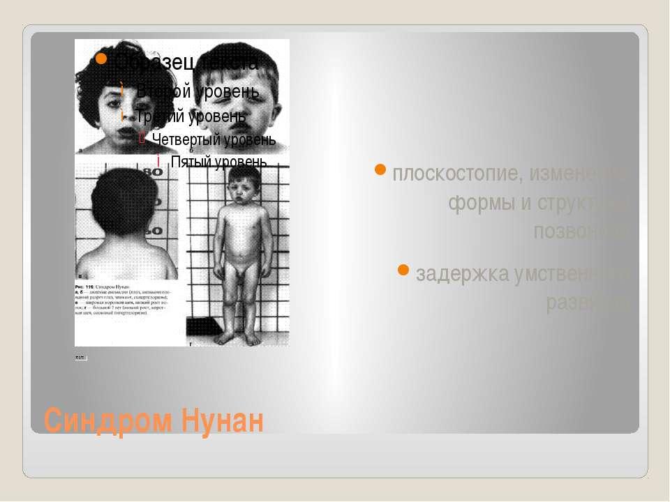 Синдром Нунан плоскостопие, изменение формы и структуры позвонков задержка ум...
