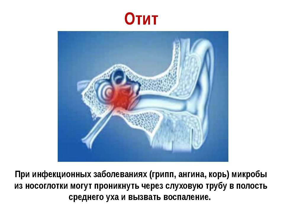Отит При инфекционных заболеваниях (грипп, ангина, корь) микробы из носоглотк...