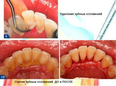 Удаление зубных отложений Снятие зубных отложений ДО и ПОСЛЕ