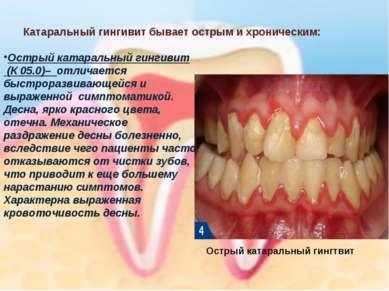 Катаральный гингивит бывает острым и хроническим: Острый катаральный гингивит...