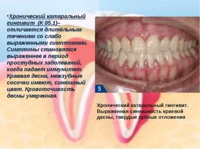 Хронический катаральный гингивит(К 05.1)–отличается длительным течением со ...