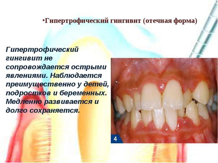 Гипертрофический гингивит (отечная форма) Гипертрофический гингивит не сопров...