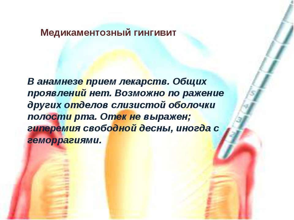 Медикаментозный гингивит В анамнезе прием лекарств. Общих проявлений нет. Воз...