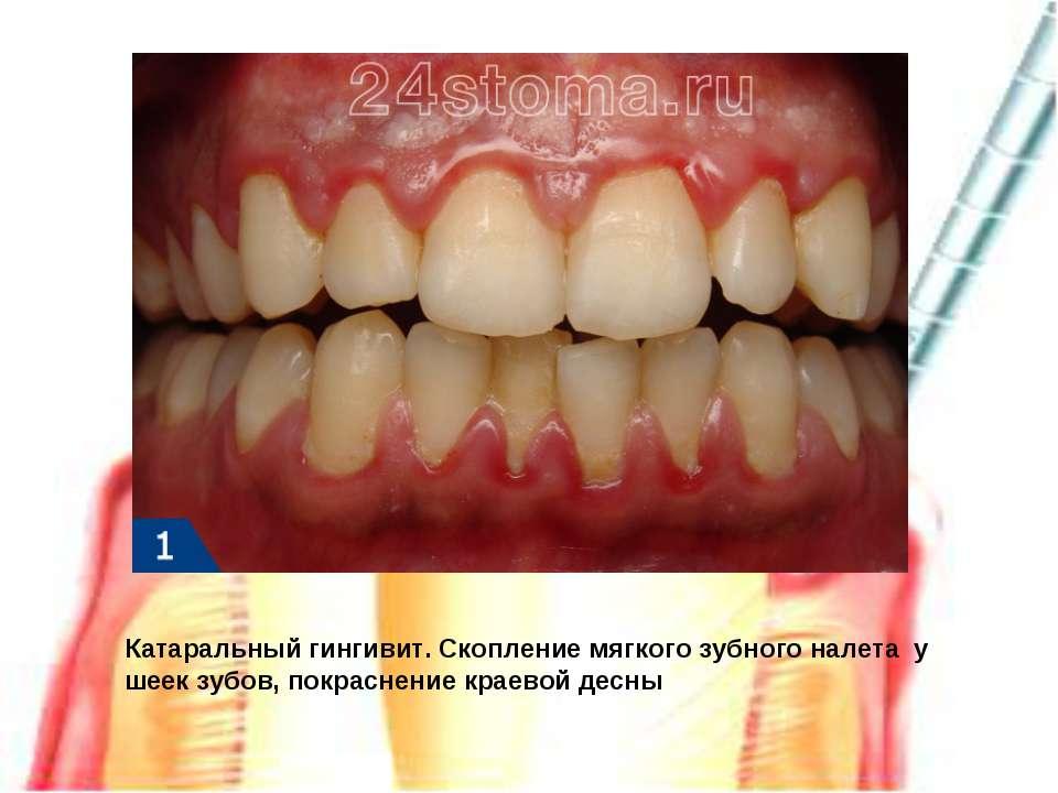 Катаральный гингивит. Скопление мягкого зубного налета у шеек зубов, покрасне...