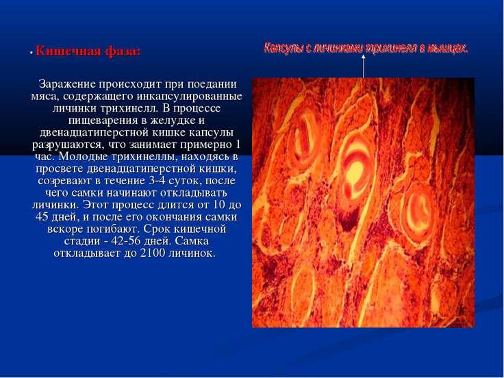 • Кишечная фаза: Заражение происходит при поедании мяса, содержащего инкапсул...