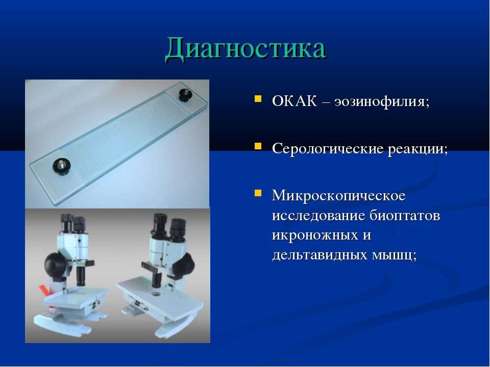 Диагностика ОКАК – эозинофилия; Серологические реакции; Микроскопическое иссл...