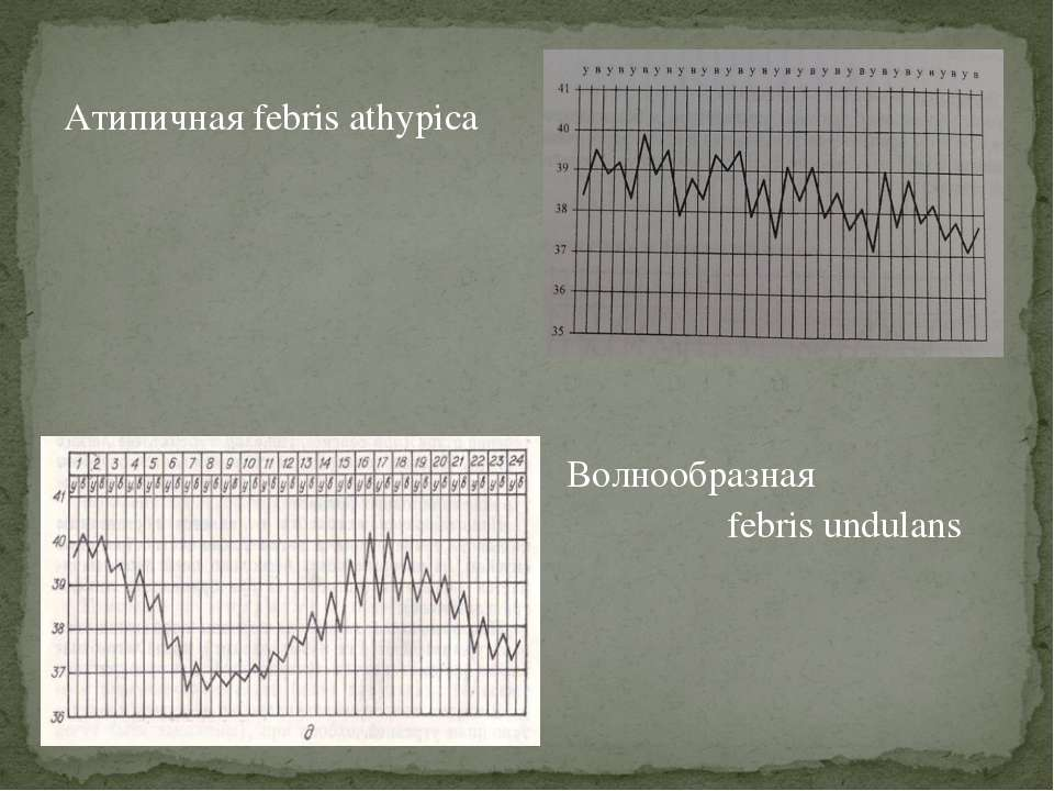 Атипичная febris athypica Волнообразная febris undulans
