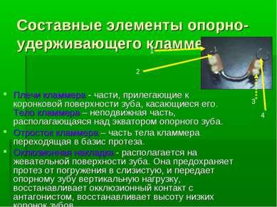 Составные элементы опорно-удерживающего кламмера: Плечи кламмера - части, при...