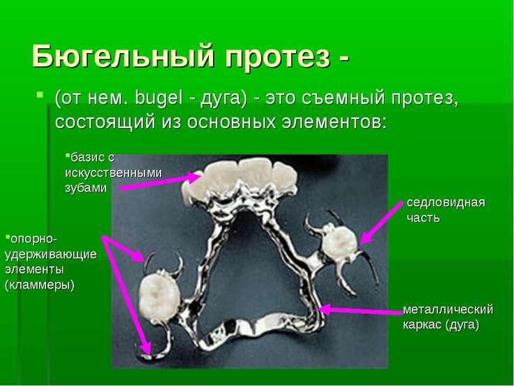 Бюгельный протез - (от нем. bugel - дуга) - это съемный протез, состоящий из ...