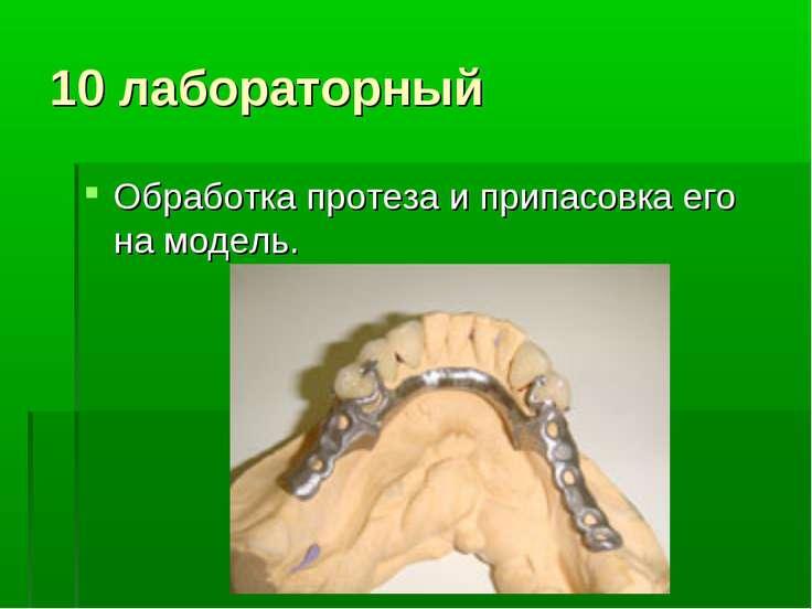 10 лабораторный Обработка протеза и припасовка его на модель.