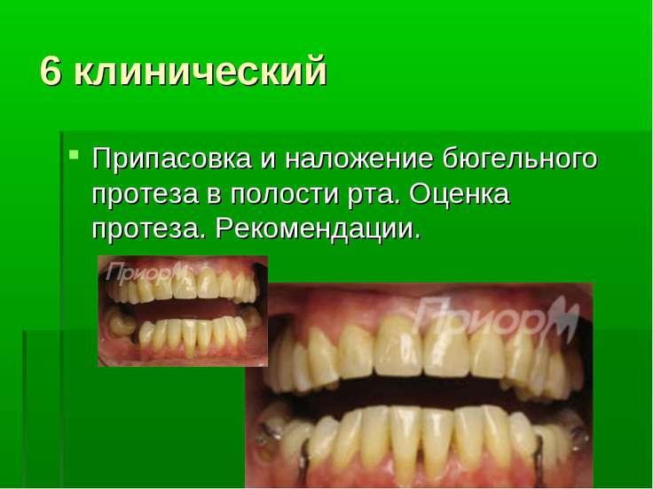 6 клинический Припасовка и наложение бюгельного протеза в полости рта. Оценка...
